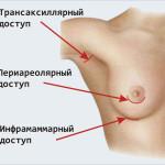 Силиконовые имплантаты