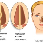 Кому делали операцию на носовую перегородку