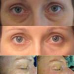 Отзывы о гиалуроновой кислоте для глаз